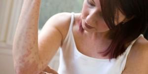 How to Diagnose Eczema