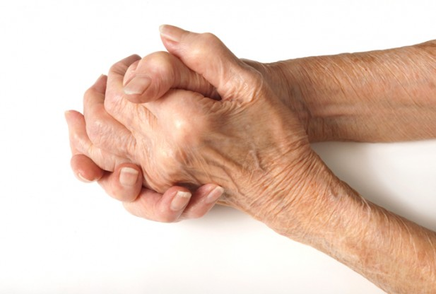 7 Tips To Deal With Rheumatoid Arthritis