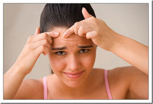 Simple Home Remedies Which Help Against Pimples
