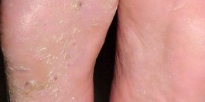 Athlete's Foot and its Causes