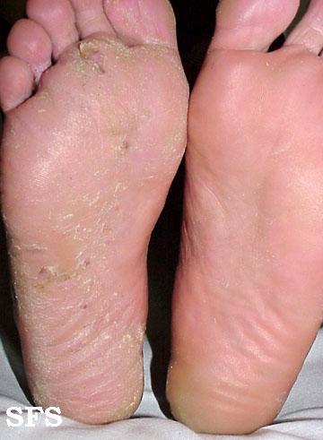 tinea_pedis_athletes_foot