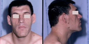 Causes, Symptoms and Treatments of Acromegaly
