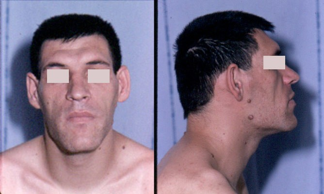 Acromegaly before and after