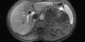 Symptoms and Treatment of Adrenal Cortical Carcinoma