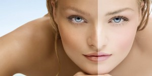 5 Home Remedies for Sun Tanned Skin